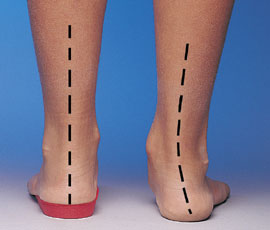 campus physical therapy